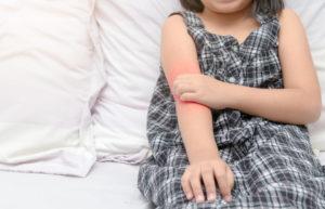 帯状疱疹 子供